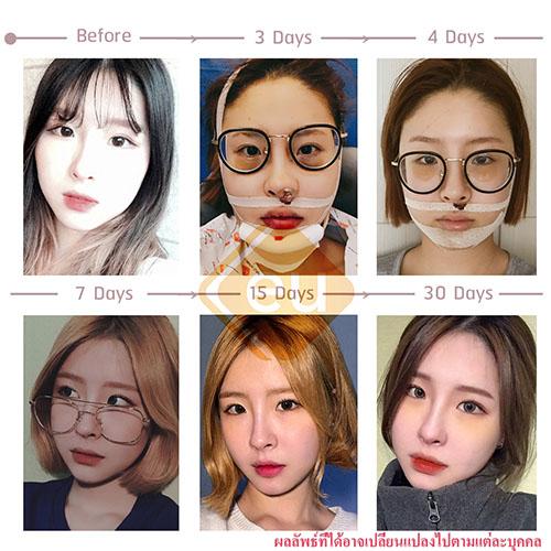 ศัลยกรรมปรับโครงหน้าสาวเกาหลี