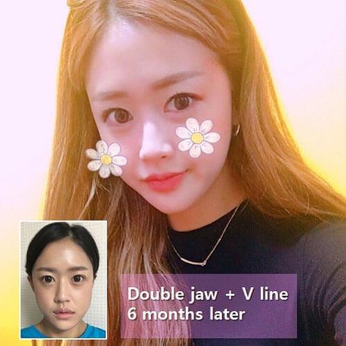 โมเดลศัลยกรรมคนเกาหลี
